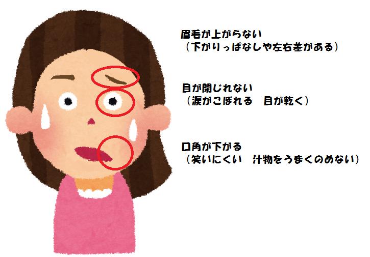 原因 麻痺 顔面 神経